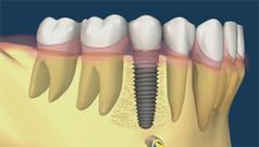 Implantes dentales en Sant Boi Dr. Ruiz
