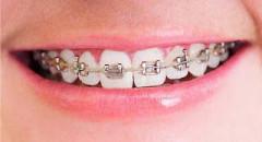 Ortodoncia en Sant Boi Clínica dental Dr. Ruiz